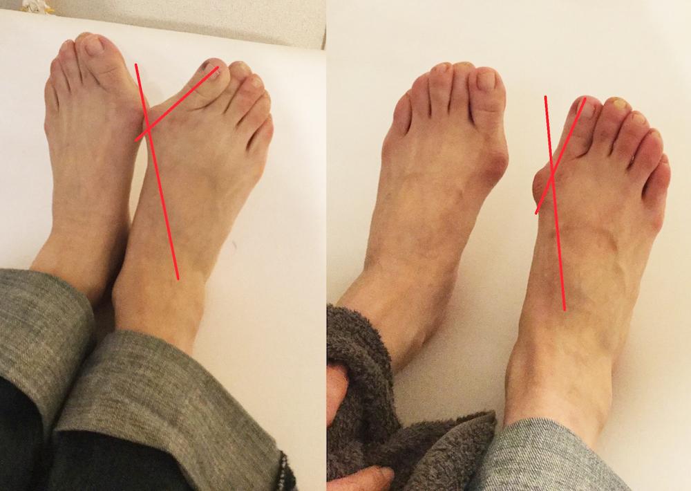 外反母趾角の変化